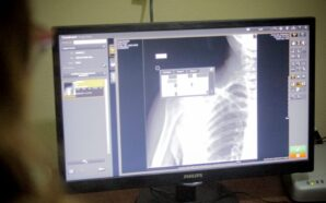 Monte Cristo adquirió un nuevo digitalizador de placas radiográficas